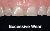 Excessive tooth wear before