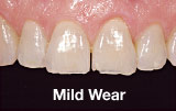 Mild tooth wear before
